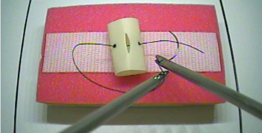 Exercice d'entrainement pour la suture par voies coelioscopique et coelioscopique robot-assistée